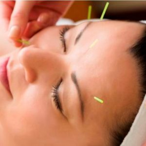 Lifting facial Acupuntura